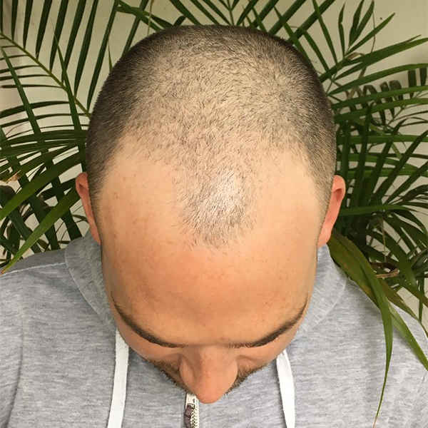 FUE Hair transplant surgery procedure