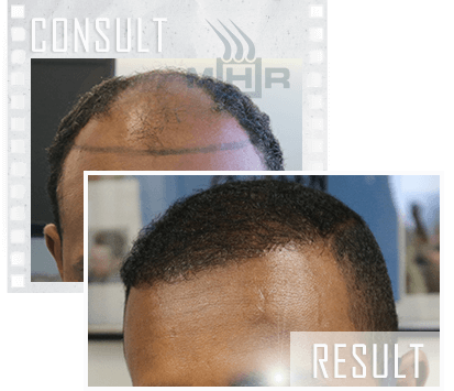 MHR Consult Photos Before and After Hair Restoration