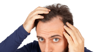 Thinning Hair Loss