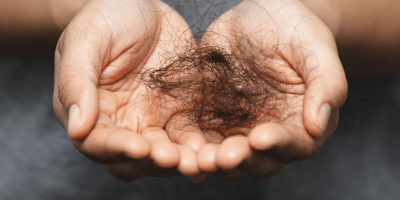 Understanding your hair loss