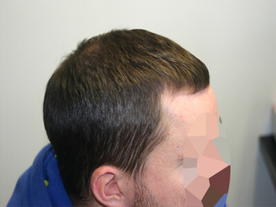 Side view 3-6 months after PRP